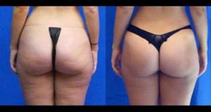Cellulite Reduction Exercises And Natural Home Remedies