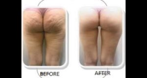 How to Get Rid of Cellulite Naturally, FAST & SAFE